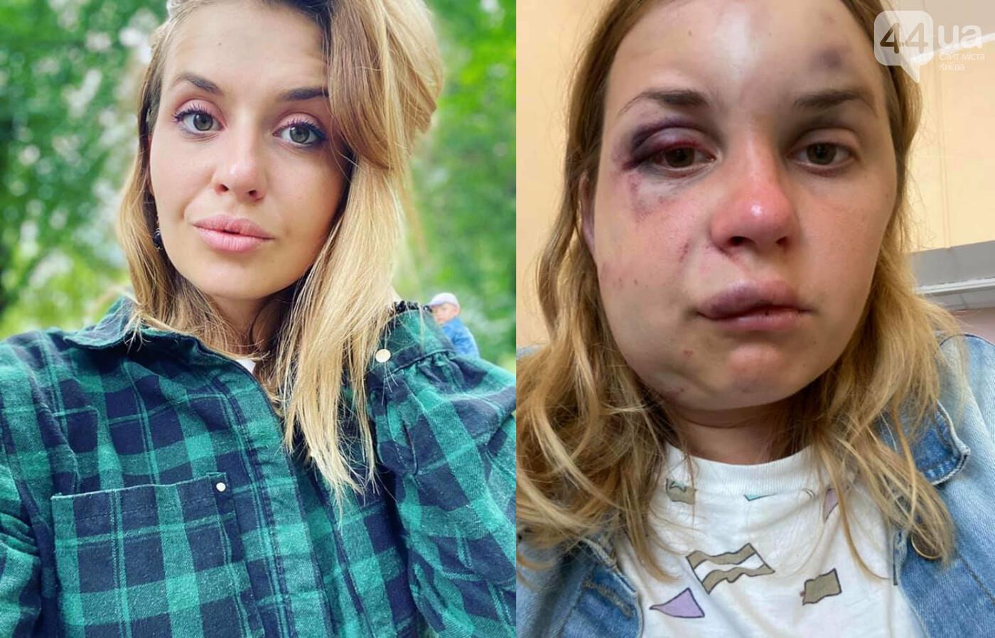 В поезде из Мариуполя в Киев жестоко избили и пытались изнасиловать молодую маму, фото-1, Фото Анастасии Луговой