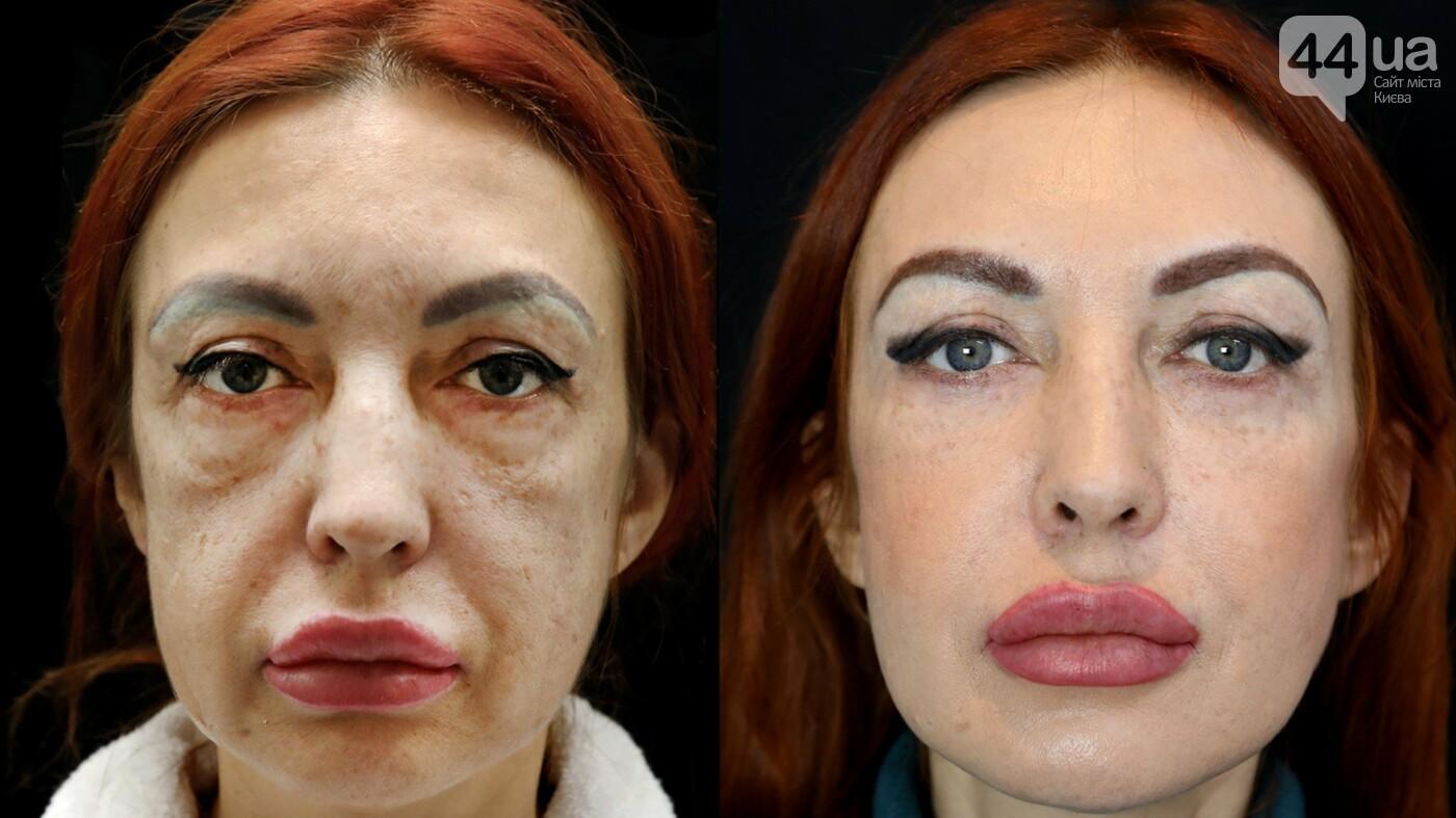 Новый тренд в пластической хирургии - без рубцов и шрамов!, фото-1