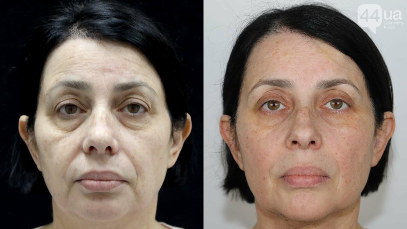 Новый тренд в пластической хирургии - без рубцов и шрамов!, фото-2