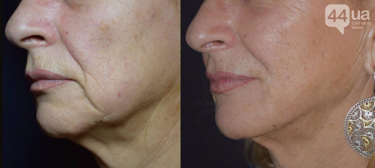 Новый тренд в пластической хирургии - без рубцов и шрамов!, фото-3