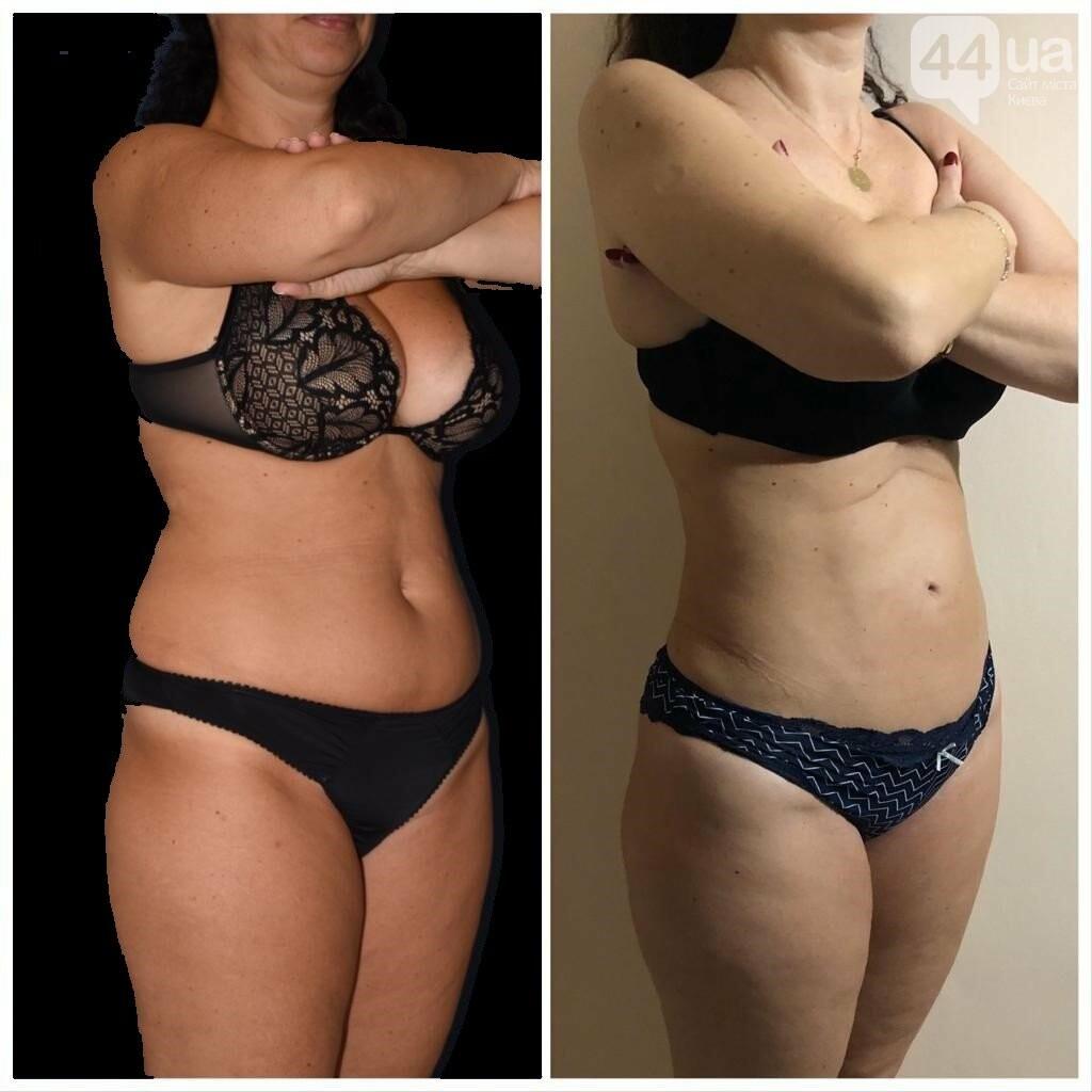 Новый тренд в пластической хирургии - без рубцов и шрамов!, фото-4