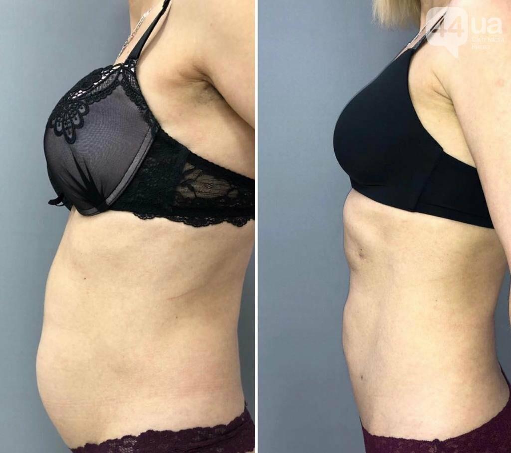 Новый тренд в пластической хирургии - без рубцов и шрамов!, фото-5