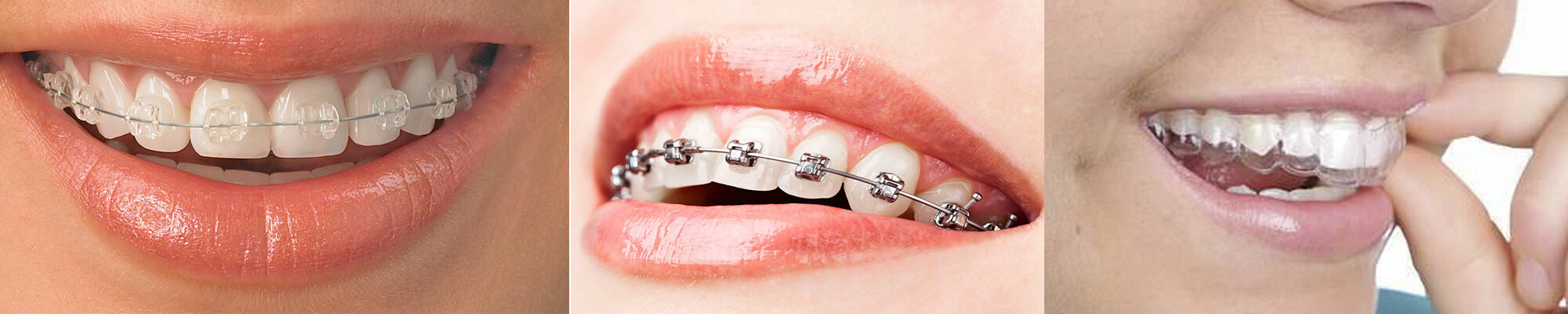 Ортодонтия, фото-1