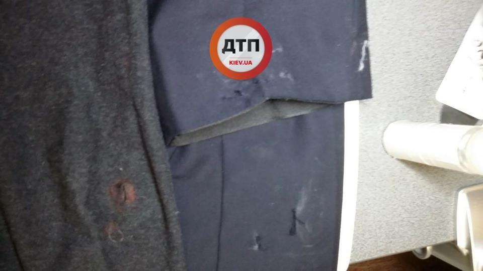 В Киеве возле университета едва не погибли четыре подростка (ФОТО), фото-3