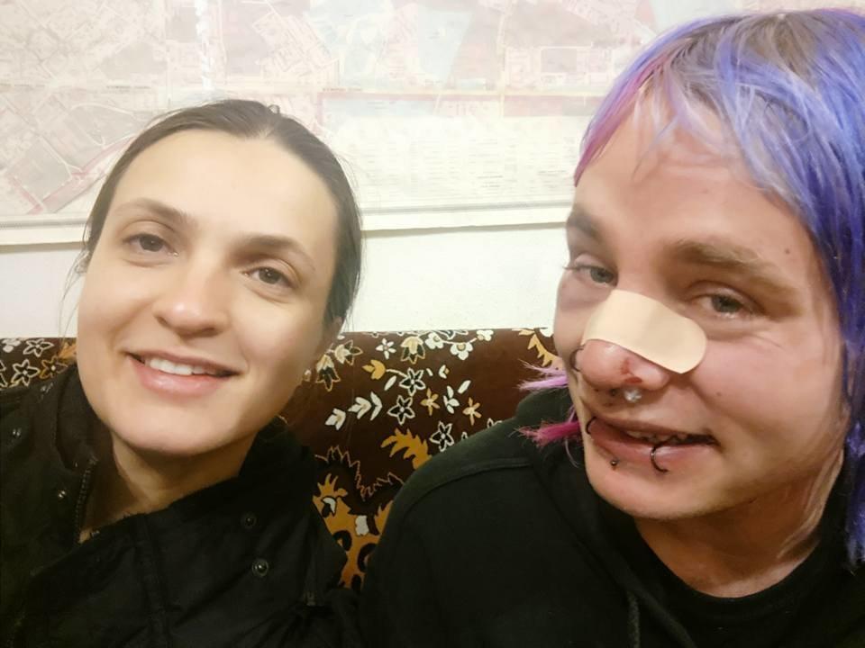 Крещение по-киевски: в столице трое неизвестных избили англичанина (ФОТО), фото-2