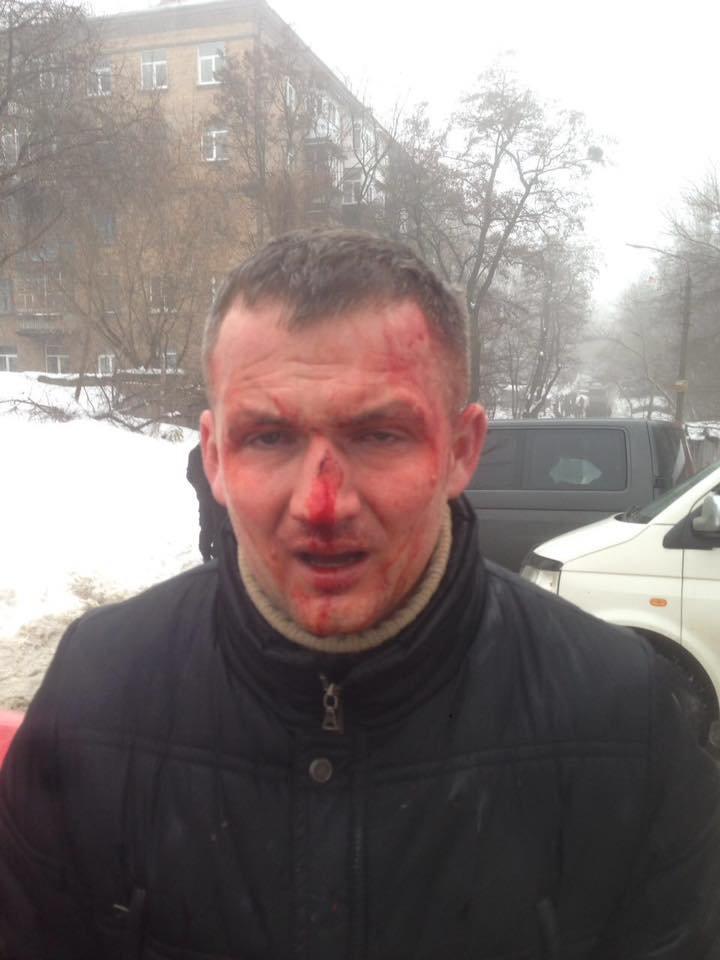 В Киеве избили нардепа Левченко (ФОТО), фото-1