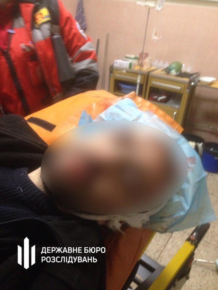 В Киеве подрались два полицейских: у одного ножевые ранения, фото-1