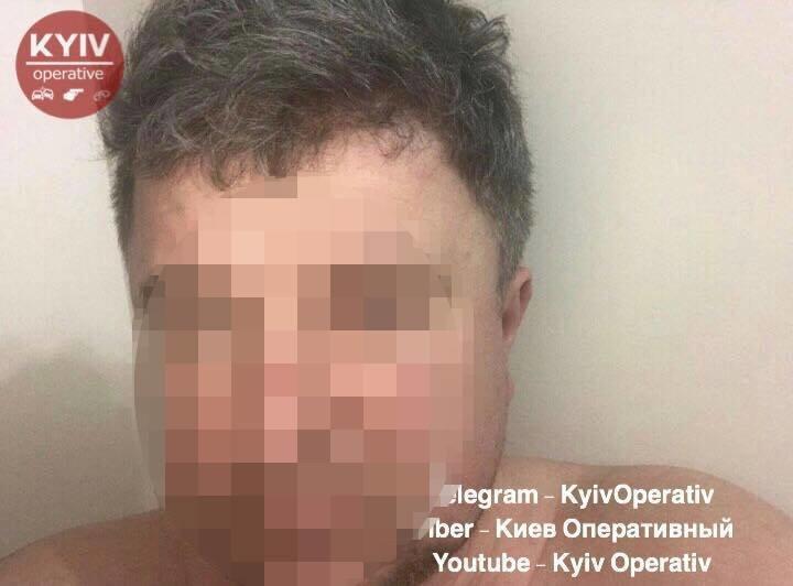 В Киеве мужчина избил жену, выбросил с 12-го этажа собаку и угрожал расправой соседке, фото-1