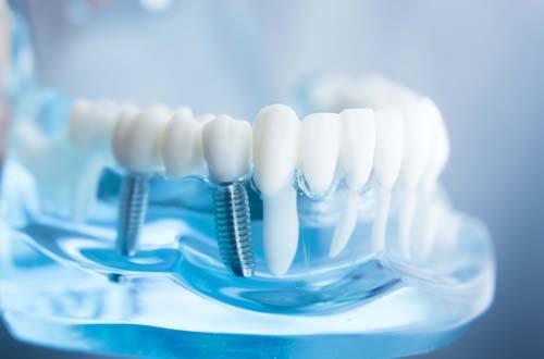 Что такое качественная имплантация зубов?, фото-1