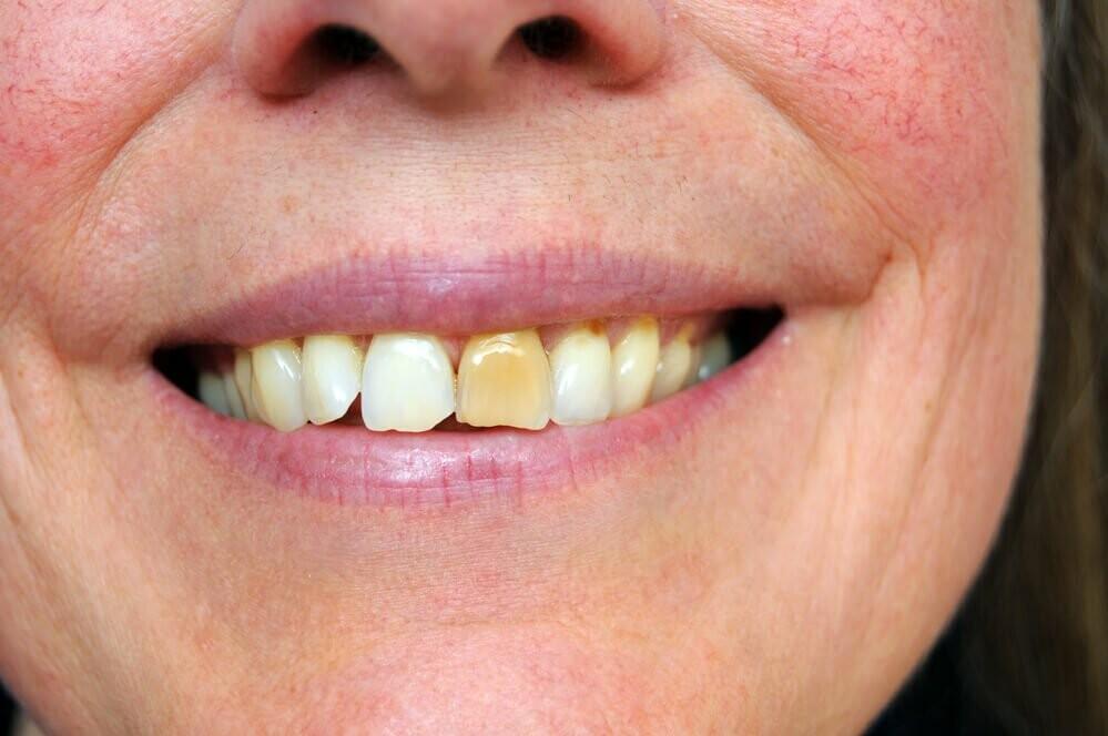 что делать если пожелтел керамический зуб