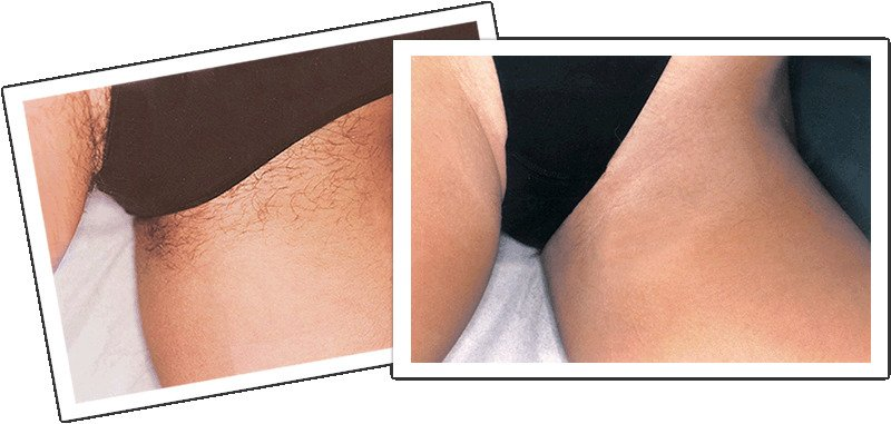 депиляция классическое бикини фото до и после